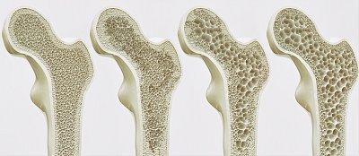 Bojíte se osteoporózy? V průběhu října se můžete nechat zdarma vyšetřit